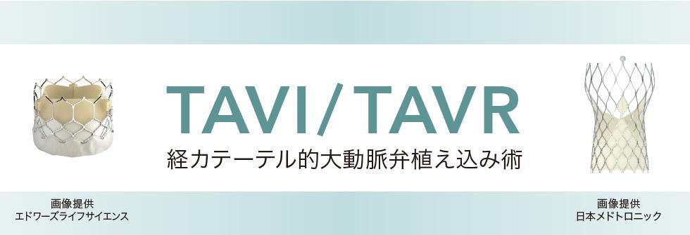 TAVI/TAVR